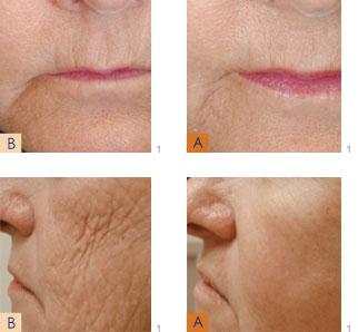 Laser Skin Rejuvenation James Gardner Md